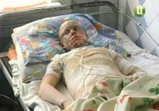 Через екстремальне селфі 12-річний славутчанин потрапив до опікового відділення
