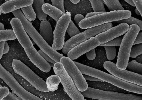 Експерти встановили, що спричинило отруєння шепетівських школярів