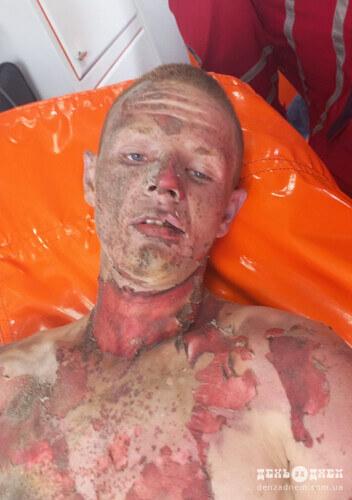 У Шепетівці поліція просить опізнати чоловіка, якого знайшли ураженого струмом на залізниці (фото в статті)